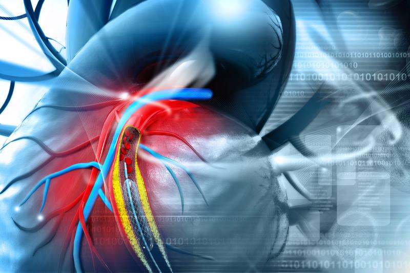 Imagen de la implantación de un stent cardiaco